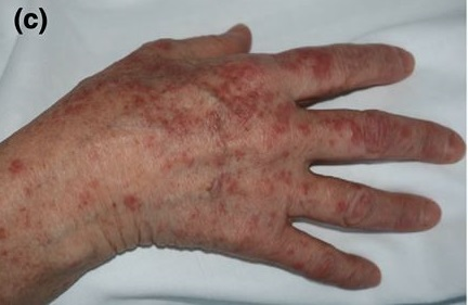 Những dấu hiệu nhận biết bệnh Covid-19 qua da -0
