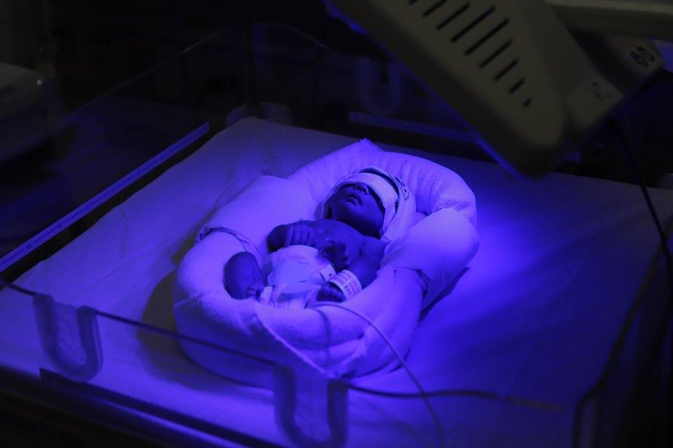 Hy hữu giữ thai nhi năm tuần trong bụng dù sản phụ đã vỡ tử cung -0