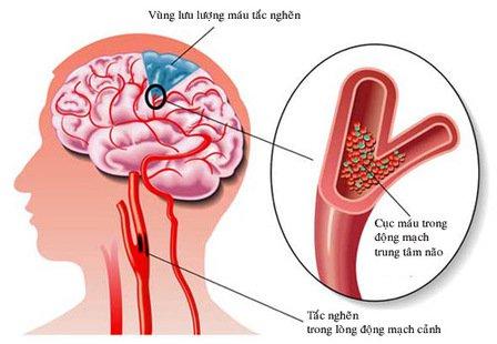Gia tăng đột quỵ não ở người trẻ, những nguyên nhân nào bị bỏ sót? -0