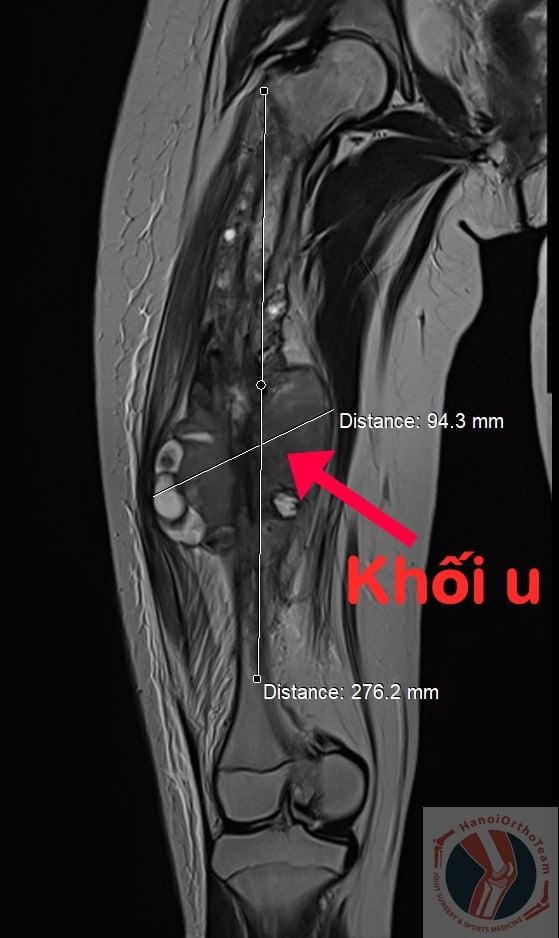 Kỳ tích bệnh nhi nhỏ tuổi nhất Việt Nam được thay toàn bộ xương đùi -0